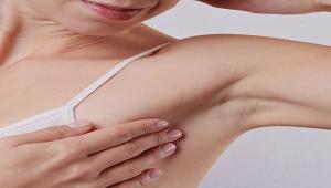 Yaz Aylarında Aşırı Terleme ve Botoks Tedavisi