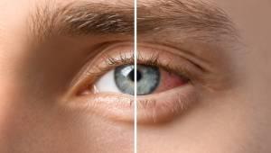 40 yaş sonrası yakın görme bozukluğu neden oluşur?